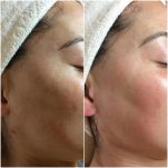 Tone/Texture evened out using Human Stemcell Microneedling